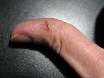 Примета порезать палец
