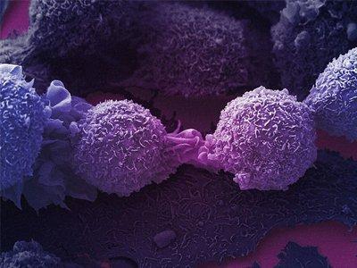 Заговоры от рака